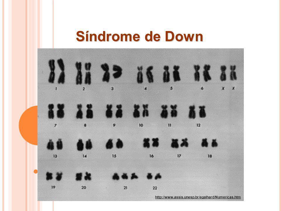 Síndrome de Down http://www.assis.unesp.br/egalhard/Numericas.htm