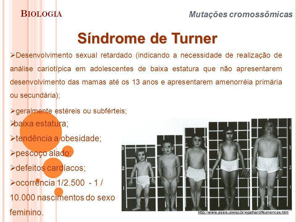 B IOLOGIA Mutações cromossômicas Síndrome de Turner baixa estatura; tendência a obesidade; pescoço alado; defeitos cardíacos; ocorrência 1/2.500 - 1 /