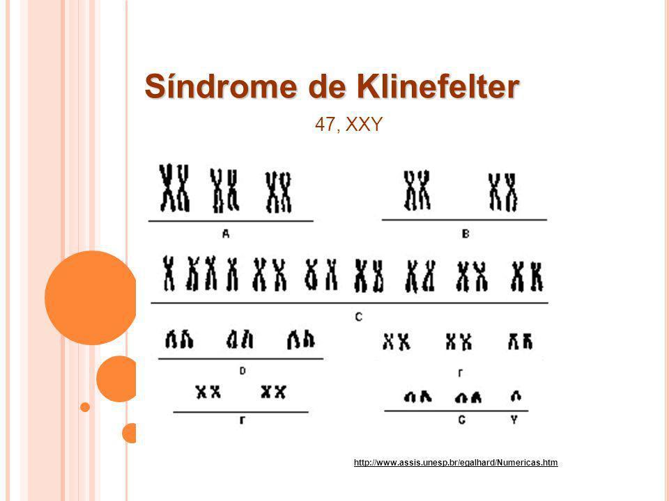 Síndrome de Klinefelter http://www.assis.unesp.br/egalhard/Numericas.htm 47, XXY