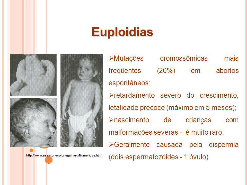 Aneuploidias http://www.assis.unesp.br/egalhard/Numericas.htm Alterações no número (falta ou excesso de alguns cromossomos da espécie) causadas por erros nas divisões celulares.