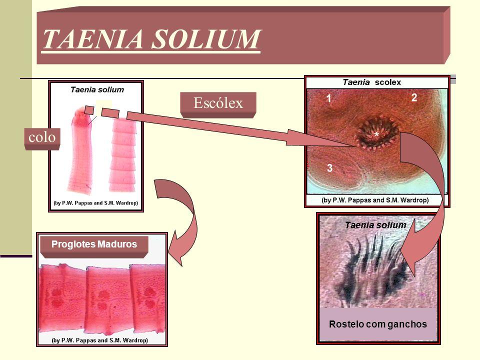 PLATYHELMINTHES: CLASSE CESTODA Principal exemplo é a Taenia solium, parasita digenético que vive no intestino humano fixa por ganchos quitinosos pres