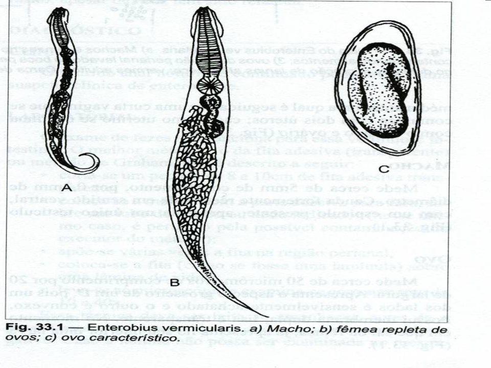 Enterobius vermiculares MORFOLOGIA MACHO Mede cerca de 5 mm X 0,2 mm com MACHO Mede cerca de 5 mm X 0,2 mm com espículo presente espículo presente FÊM