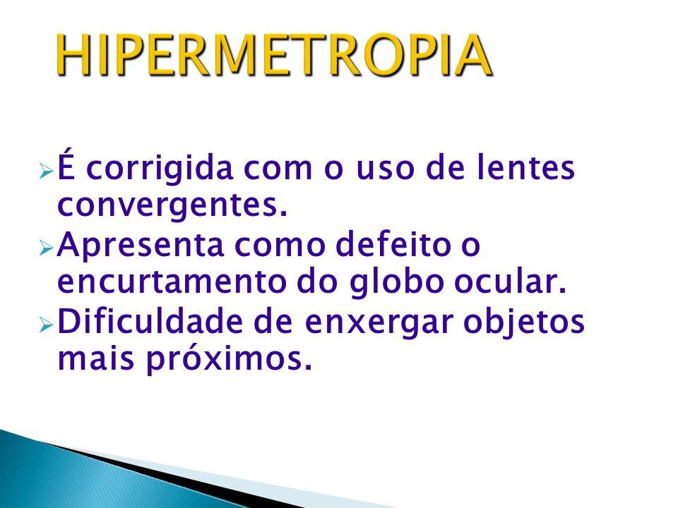 HIPERMETROPIA MIOPIA PRESBIOPIA ASTIGMATISMO ESTRABISMO CATARATA