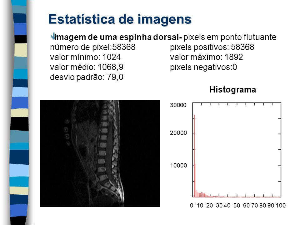 Estatística de imagens êImagem de uma espinha dorsal- pixels em ponto flutuante número de pixel:58368 pixels positivos: 58368 valor mínimo: 1024valor