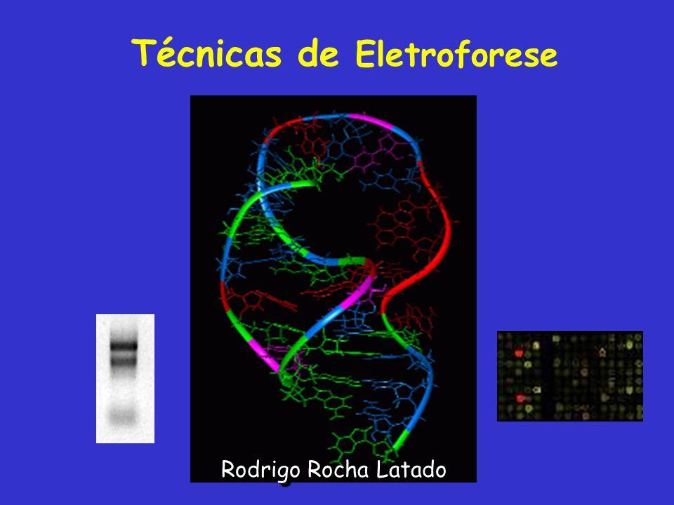 Técnicas de Eletroforese Rodrigo Rocha Latado