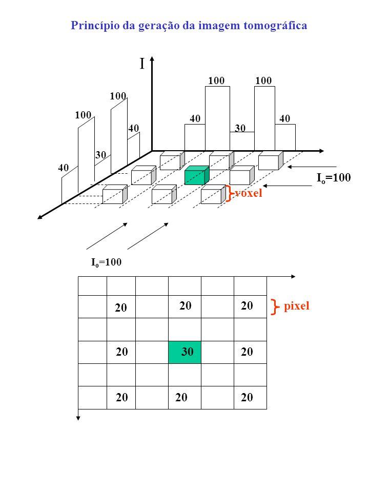 Princípio da geração da imagem tomográfica 20 30 pixel I 100 40 30 100 30 40 I o =100 voxel