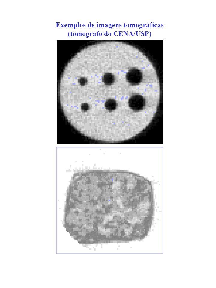 Exemplos de imagens tomográficas (tomógrafo do CENA/USP)