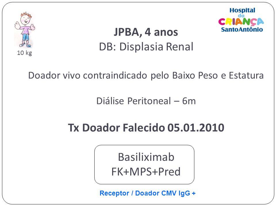 JPBA, 4 anos DB: Displasia Renal Doador vivo contraindicado pelo Baixo Peso e Estatura Diálise Peritoneal – 6m Tx Doador Falecido 05.01.2010 Basilixim