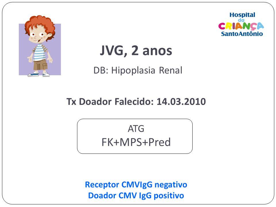 JVG, 2 anos DB: Hipoplasia Renal Tx Doador Falecido: 14.03.2010 ATG FK+MPS+Pred Receptor CMVIgG negativo Doador CMV IgG positivo