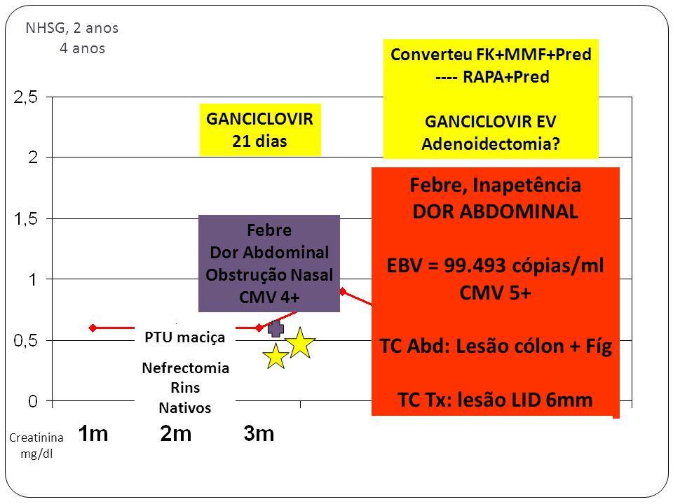 PTU maciça Nefrectomia Rins Nativos NHSG, 2 anos 4 anos Creatinina mg/dl Febre Dor Abdominal Obstrução Nasal CMV 4+ GANCICLOVIR 21 dias Febre, Inapetê