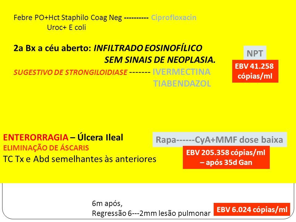 Febre PO+Hct Staphilo Coag Neg ---------- Ciprofloxacin Uroc+ E coli 2a Bx a céu aberto: INFILTRADO EOSINOFÍLICO SEM SINAIS DE NEOPLASIA. SUGESTIVO DE