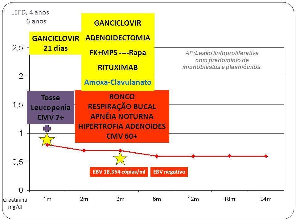 LEFD, 4 anos 6 anos Creatinina mg/dl Tosse Leucopenia CMV 7+ GANCICLOVIR 21 dias RONCO RESPIRAÇÃO BUCAL APNÉIA NOTURNA HIPERTROFIA ADENOIDES CMV 60+ G