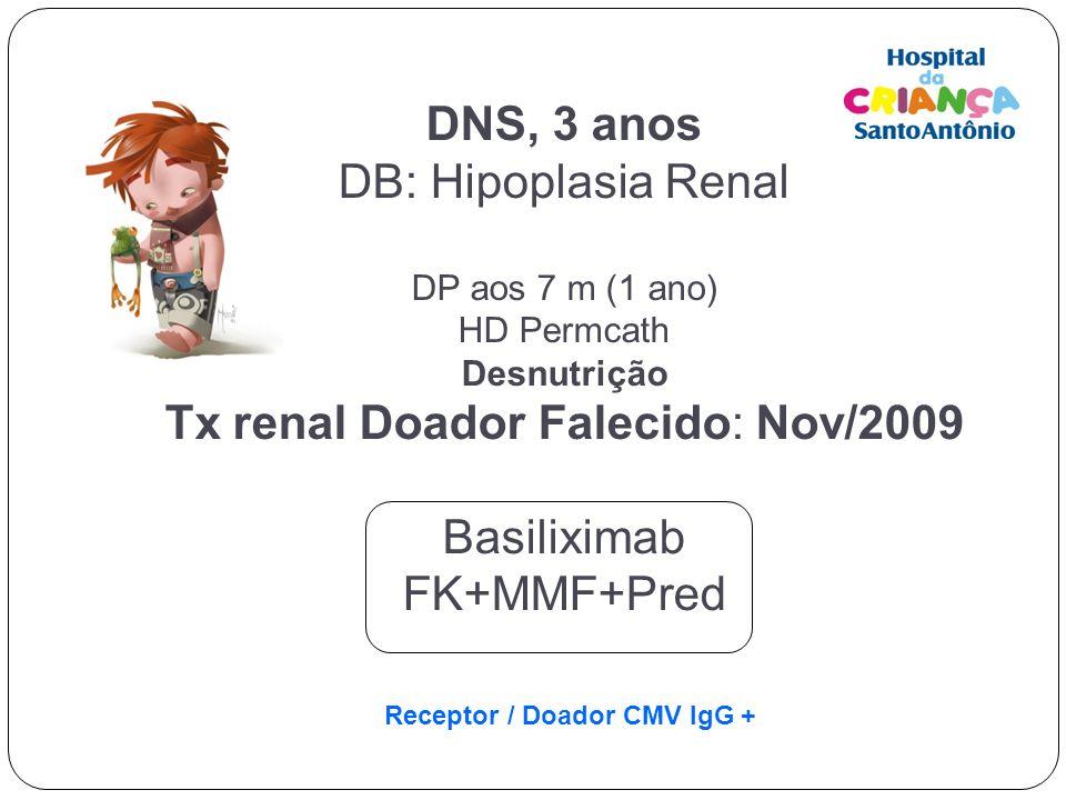DNS, 3 anos DB: Hipoplasia Renal DP aos 7 m (1 ano) HD Permcath Desnutrição Tx renal Doador Falecido: Nov/2009 Basiliximab FK+MMF+Pred Receptor / Doad