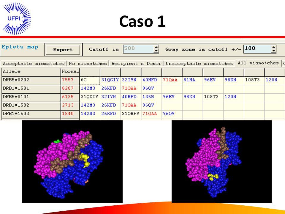 Caso 2 – masculino, lista espera Single antigen Anticorpo – HLA classe II HLA DQ 2, 4 e 7 cPRA – 77% LISTA DE ESPERA – cPRA – zero EpHLA Não tipificação HLA – DQ – inferir DL Imunoreatividade soro R Determinar o epítopo