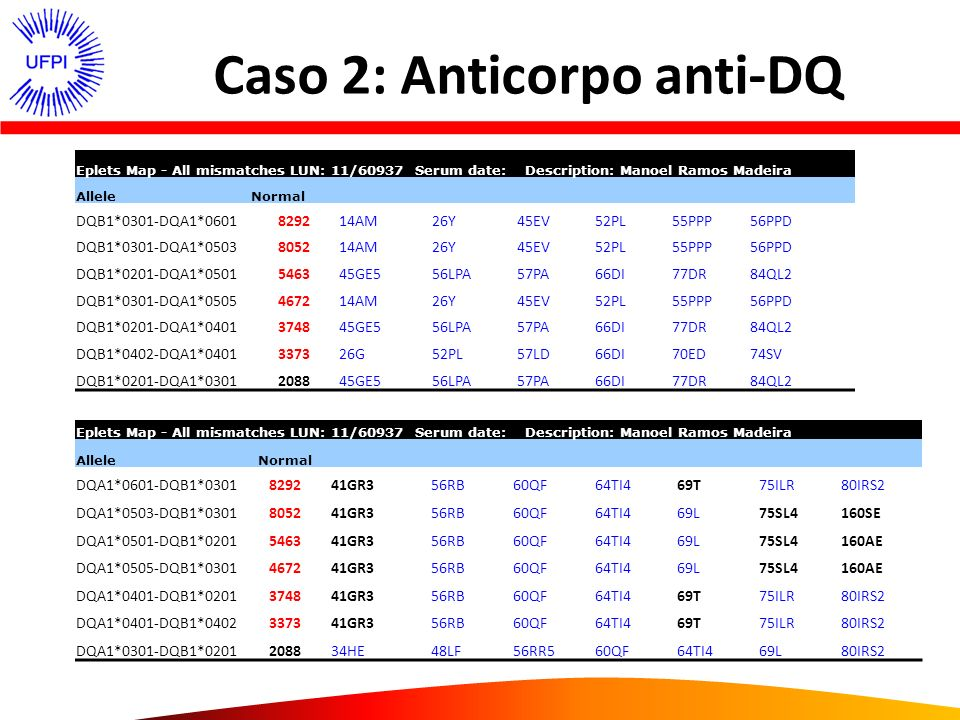 Caso 2: Anticorpo anti-DQ Eplets Map - All mismatches LUN: 11/60937 Serum date: Description: Manoel Ramos Madeira AlleleNormal DQB1*0301-DQA1*06018292