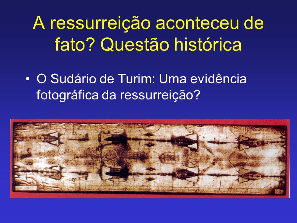 A ressurreição aconteceu de fato? Questão histórica O Sudário de Turim: Uma evidência fotográfica da ressurreição?