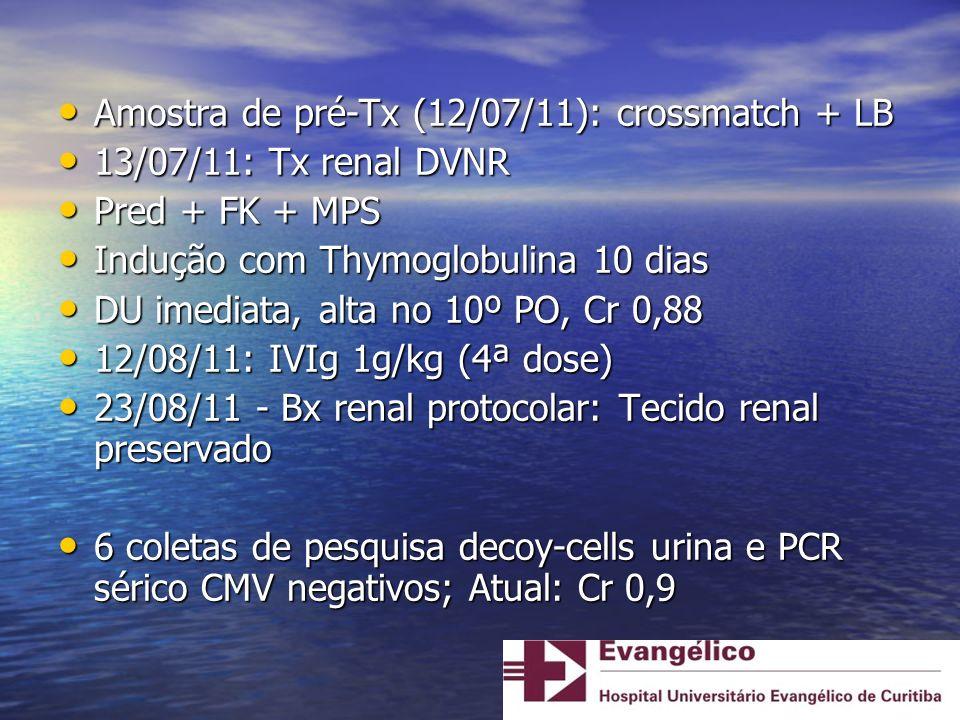 Amostra de pré-Tx (12/07/11): crossmatch + LB Amostra de pré-Tx (12/07/11): crossmatch + LB 13/07/11: Tx renal DVNR 13/07/11: Tx renal DVNR Pred + FK