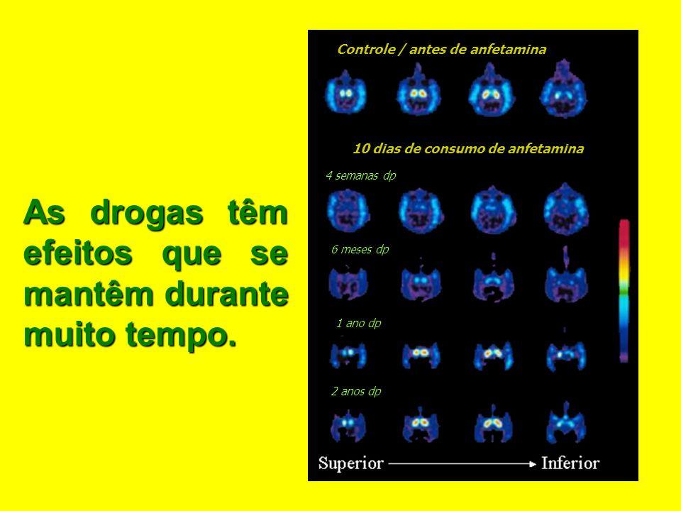 Cérebro Depois de Drogas Normal Consumidor Cocaina 10 dias sem Cocaina Consumidor Cocaina 100 dias sem Cocaina