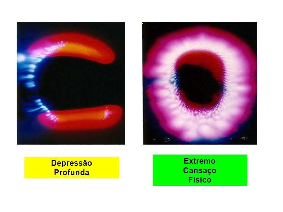 Retenção de Sentimentos Dependente Químico Infecção Intestinal Equilibrio Energético