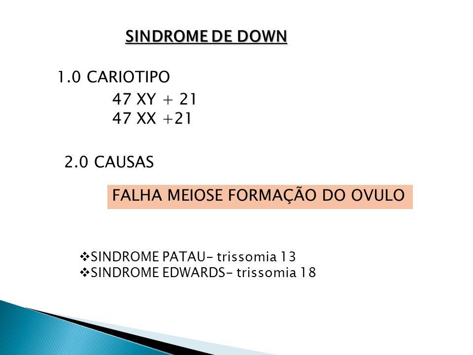 SINDROME DE DOWN 1.0 CARIOTIPO 47 XY + 21 47 XX +21 2.0 CAUSAS FALHA MEIOSE FORMAÇÃO DO OVULO SINDROME PATAU- trissomia 13 SINDROME EDWARDS- trissomia