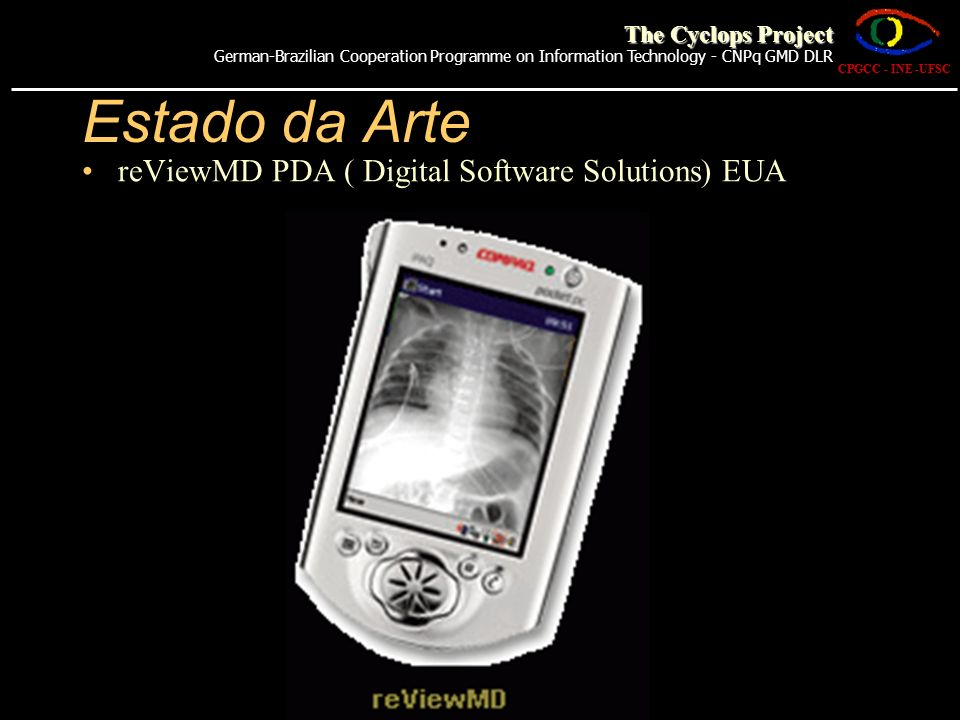 Estado da Arte CHILI- (TELE-) RADIOLOGY AND PACS (Alemanha) CPGCC - INE -UFSC The Cyclops Project German-Brazilian Cooperation Programme on Information Technology - CNPq GMD DLR
