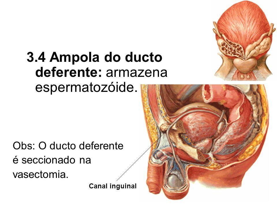 3.4 Ampola do ducto deferente: armazena espermatozóide. Obs: O ducto deferente é seccionado na vasectomia. Canal inguinal