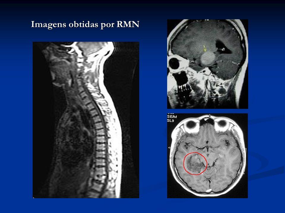 Imagens obtidas por RMN