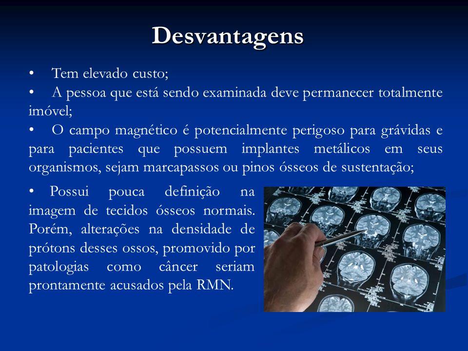 Desvantagens Tem elevado custo; A pessoa que está sendo examinada deve permanecer totalmente imóvel; O campo magnético é potencialmente perigoso para