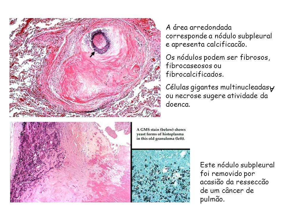 A A área arredondada corresponde a nódulo subpleural e apresenta calcificacão. Os nódulos podem ser fibrosos, fibrocaseosos ou fibrocalcificados. Célu