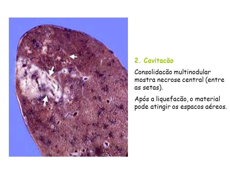 2. Cavitacão Consolidacão multinodular mostra necrose central (entre as setas). Após a liquefacão, o material pode atingir os espacos aéreos.