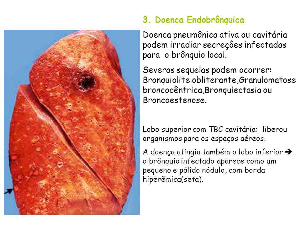 3. Doenca Endobrônquica Doenca pneumônica ativa ou cavitária podem irradiar secreçôes infectadas para o brônquio local. Severas sequelas podem ocorrer