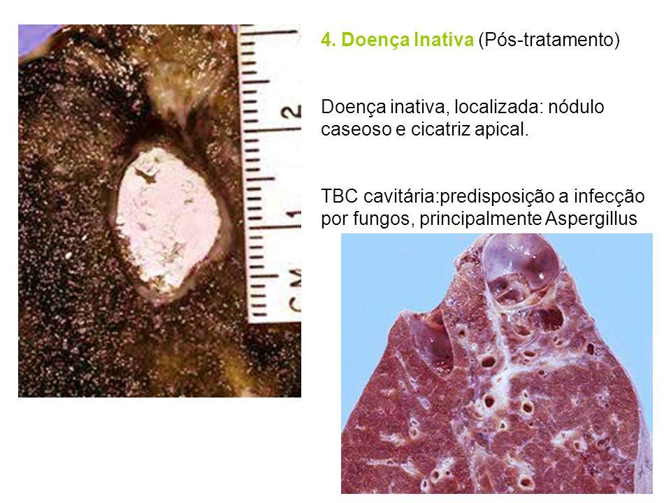 4. Doença Inativa (Pós-tratamento) Doença inativa, localizada: nódulo caseoso e cicatriz apical. TBC cavitária:predisposição a infecção por fungos, pr
