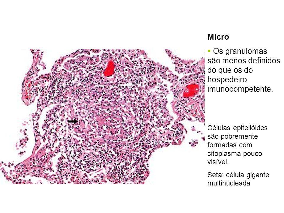 Micro Os granulomas são menos definidos do que os do hospedeiro imunocompetente. Células epitelióides são pobremente formadas com citoplasma pouco vis