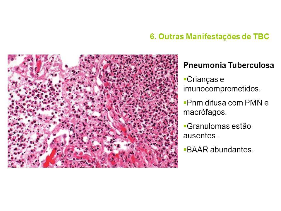 6. Outras Manifestações de TBC Pneumonia Tuberculosa Crianças e imunocomprometidos. Pnm difusa com PMN e macrófagos. Granulomas estão ausentes.. BAAR