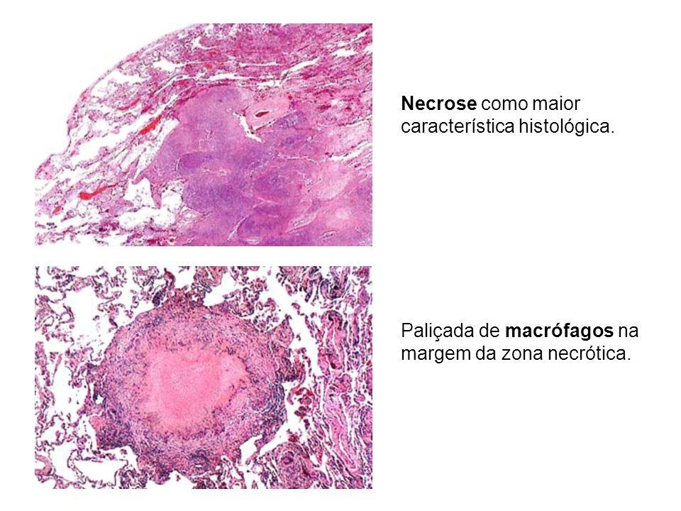 Necrose como maior característica histológica. Paliçada de macrófagos na margem da zona necrótica.