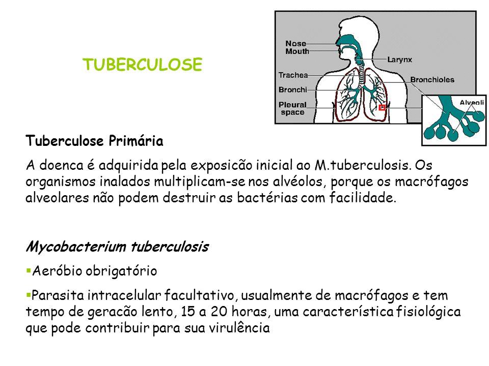 TUBERCULOSE Tuberculose Primária A doenca é adquirida pela exposicão inicial ao M.tuberculosis. Os organismos inalados multiplicam-se nos alvéolos, po