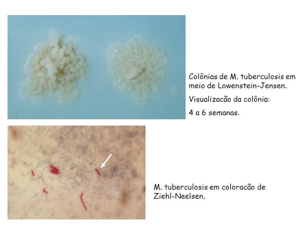 Colônias de M. tuberculosis em meio de Lowenstein-Jensen. Visualizacão da colônia: 4 a 6 semanas. M. tuberculosis em coloracão de Ziehl-Neelsen.