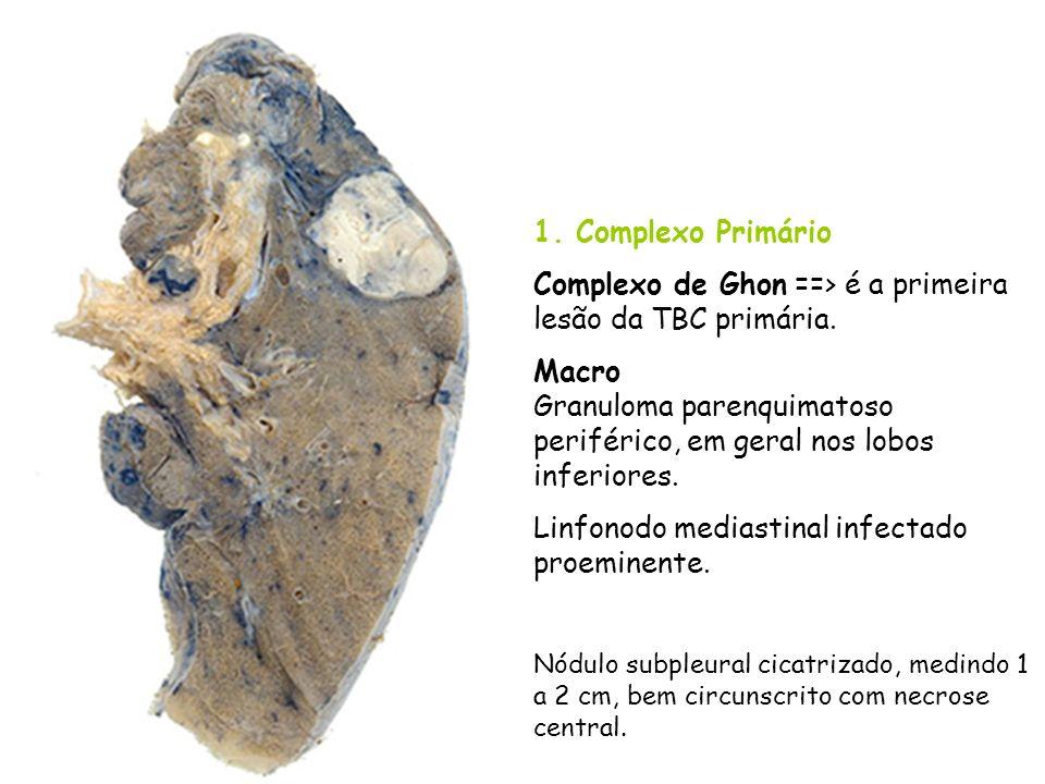 1. Complexo Primário Complexo de Ghon ==> é a primeira lesão da TBC primária. Macro Granuloma parenquimatoso periférico, em geral nos lobos inferiores