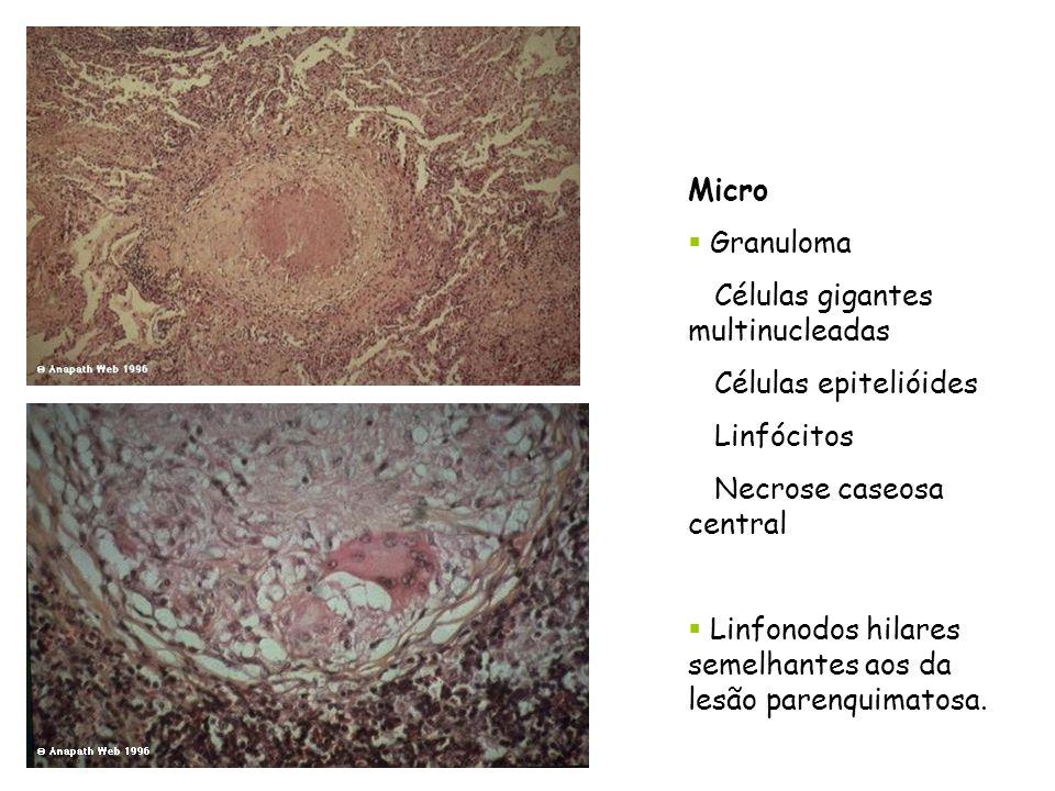 Micro Granuloma Células gigantes multinucleadas Células epitelióides Linfócitos Necrose caseosa central Linfonodos hilares semelhantes aos da lesão pa