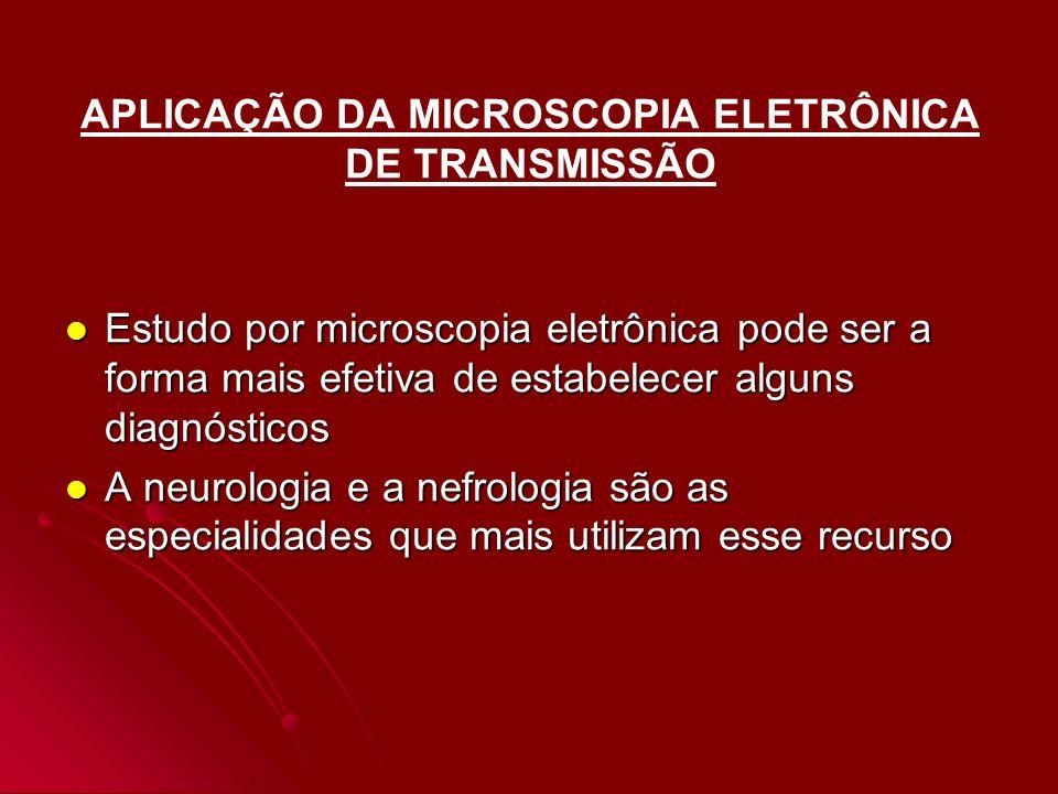 APLICAÇÃO DA MICROSCOPIA ELETRÔNICA DE TRANSMISSÃO Estudo por microscopia eletrônica pode ser a forma mais efetiva de estabelecer alguns diagnósticos