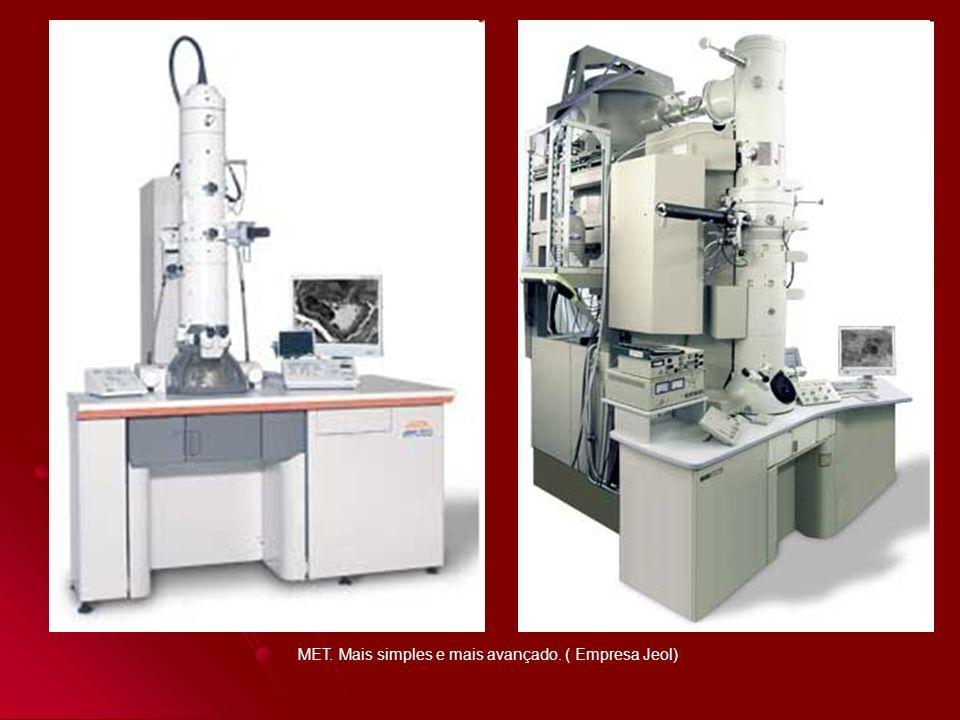 Microscopia eletrônica de biópsia renal mostra podócito hipertrófico com fusão de pedicelos sobre a membrana basal glomerular