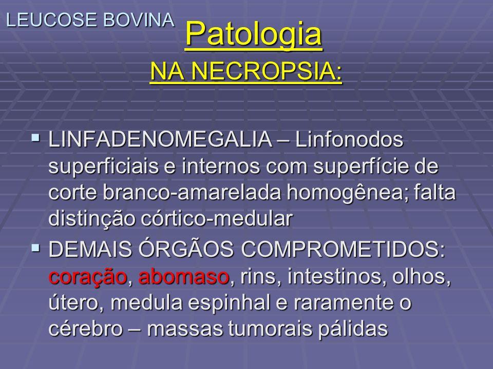 LEUCOSE BOVINA Patologia NA NECROPSIA: LINFADENOMEGALIA – Linfonodos superficiais e internos com superfície de corte branco-amarelada homogênea; falta