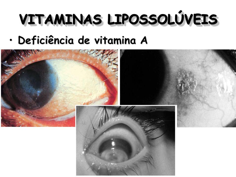 VITAMINAS LIPOSSOLÚVEIS Deficiência de vitamina ADeficiência de vitamina A