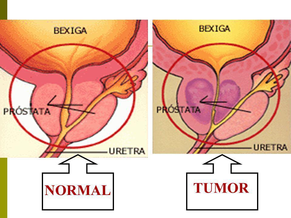 NORMAL TUMOR