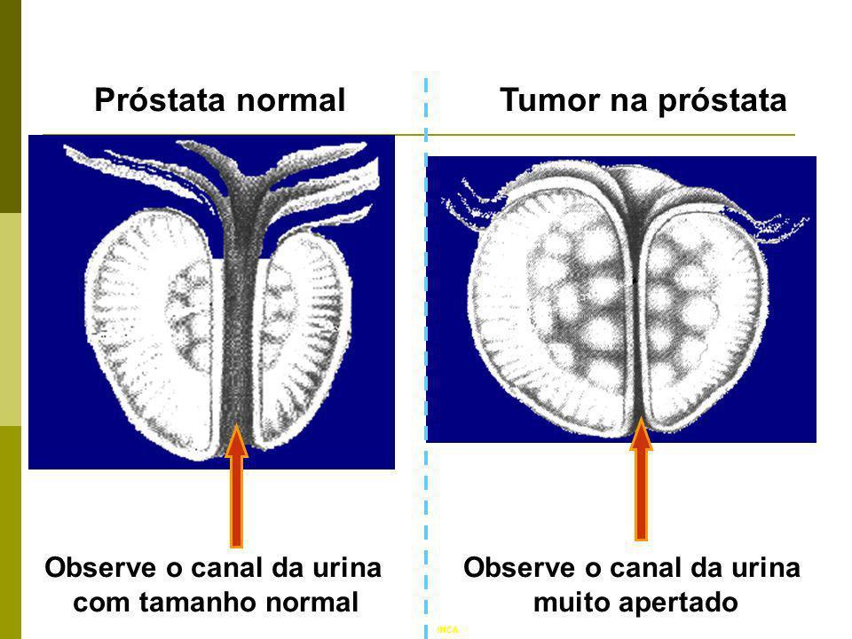 Próstata normalTumor na próstata Observe o canal da urina muito apertado Observe o canal da urina com tamanho normal INCA