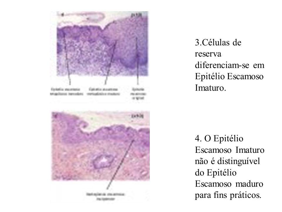 3.Células de reserva diferenciam-se em Epitélio Escamoso Imaturo. 4. O Epitélio Escamoso Imaturo não é distinguível do Epitélio Escamoso maduro para f
