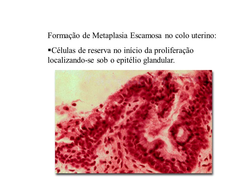 Formação de Metaplasia Escamosa no colo uterino: Células de reserva no início da proliferação localizando-se sob o epitélio glandular.
