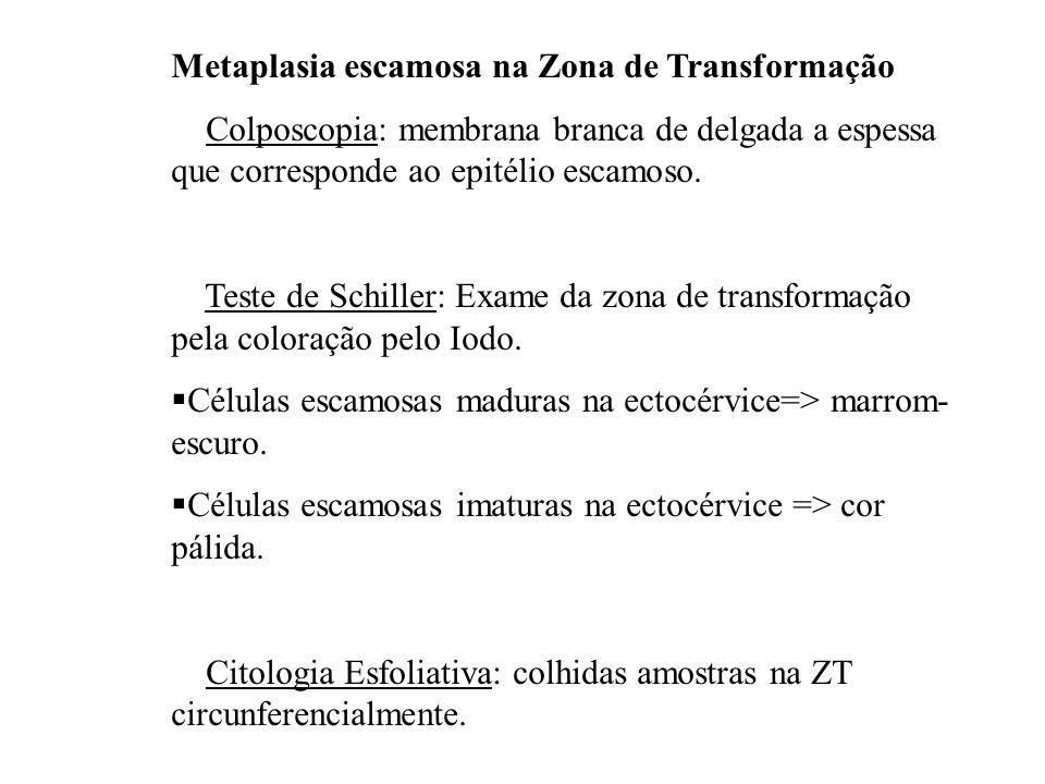 Metaplasia escamosa na Zona de Transformação Colposcopia: membrana branca de delgada a espessa que corresponde ao epitélio escamoso. Teste de Schiller