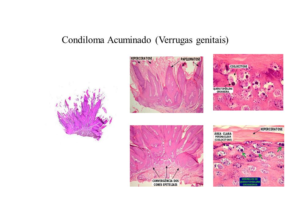 Condiloma Acuminado (Verrugas genitais)
