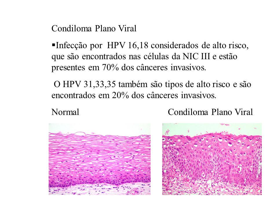 Condiloma Plano Viral Infecção por HPV 16,18 considerados de alto risco, que são encontrados nas células da NIC III e estão presentes em 70% dos cânce